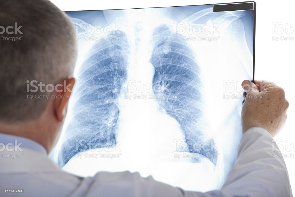 Mature doctor looking at a radiography stock photo