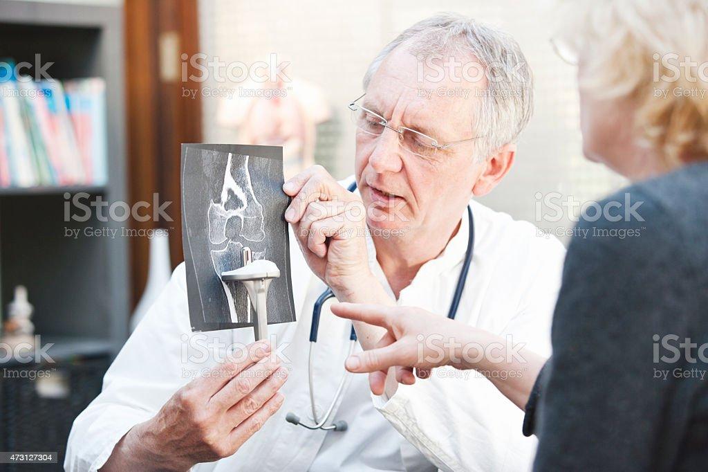 Ältere Medizin präsentieren x-ray und Knie arthroplasty um weibliche Patienten - Lizenzfrei 2015 Stock-Foto