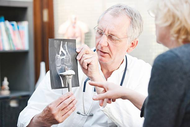 ältere medizin präsentieren x-ray und knie arthroplasty um weibliche patienten - orthopädisches hilfsmittel stock-fotos und bilder