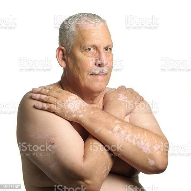Reifer Mann Mit Vitiligo Stockfoto und mehr Bilder von Arme verschränkt