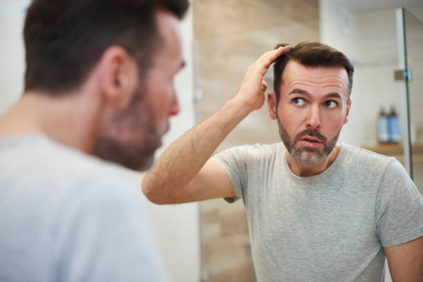 Mature men is worried about hair loss Mature men is worried about hair loss hair stock pictures, royalty-free photos & images