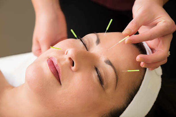 mature woman getting acupuncture treatment at the spa - acupuncture stock photos and pictures