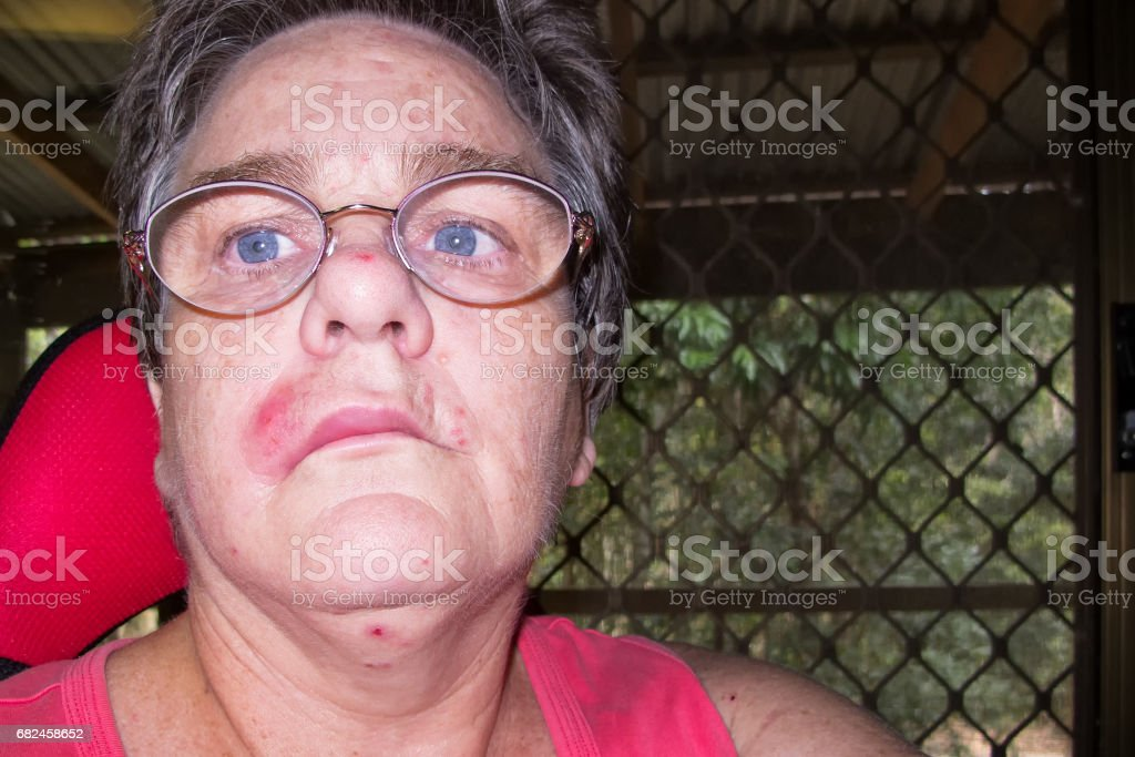 Mature woman with staph infection on face 2 stock photo