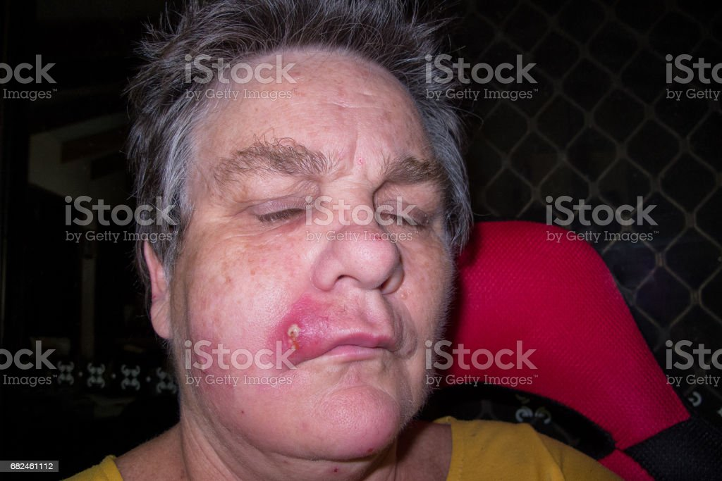 Mature woman with staph infection on face 3 stock photo