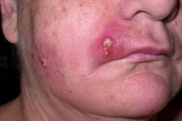 Mature woman with staph infection on face 4 stock photo