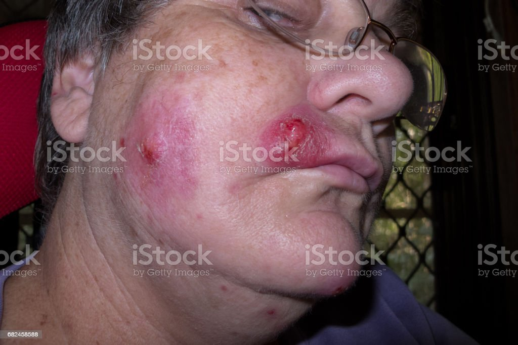 Mature woman with staph infection on face 5 stock photo