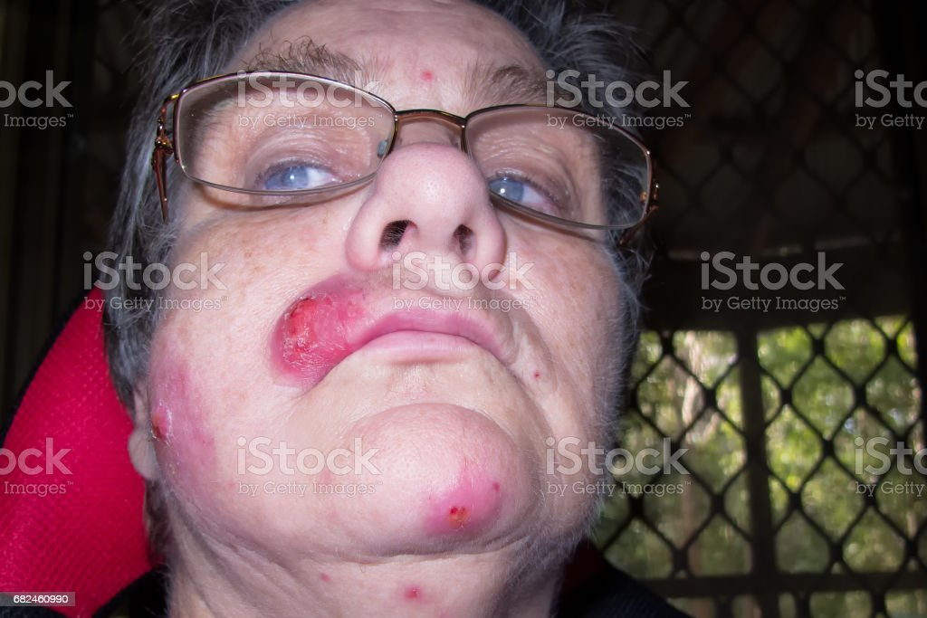 Mature woman with staph infection on face 6 stock photo