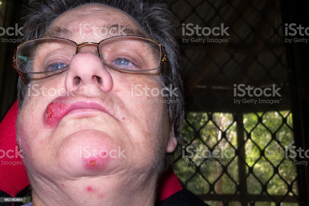 Mature woman with staph infection on face 7 stock photo