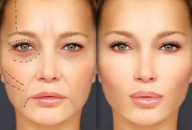 mature woman-young woman.endoscopic forehead and brow lift.marking the face.perforation lines on females face, plastic surgery concept. - eyelid stock pictures, royalty-free photos & images
