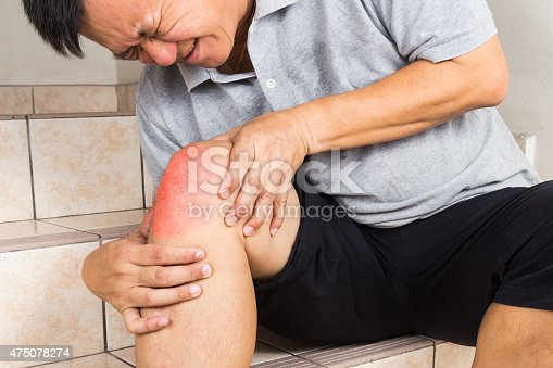 181879982istockphoto Matured man suffering acute knee joint pain seated on steps 475078274
