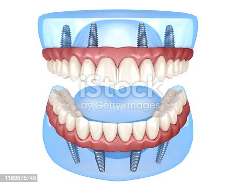Maxillary and Mandibular prosthesis with gum All on 4 system supported by implants. Medically accurate 3D illustration of human teeth and dentures