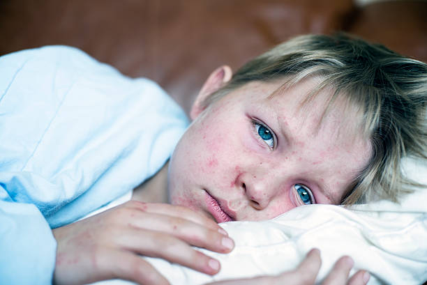Measles Very sick 5 year old little boy fighting measles infection, boy is laying in bed under the blanket with a agonizing expression, boy is covered with rash caused by virus. measles stock pictures, royalty-free photos & images