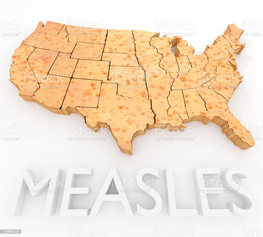 Measles Return In The US stock photo