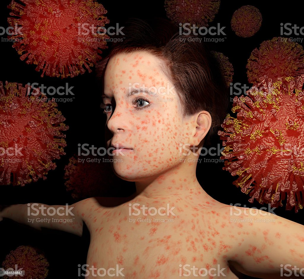 Measles Return stock photo