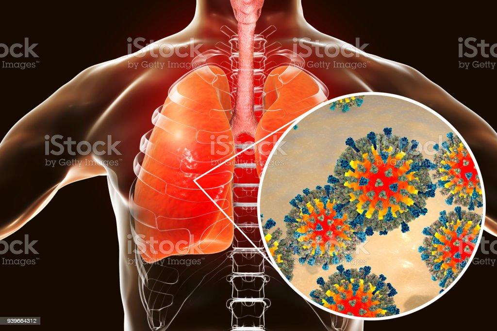 Fotografía de Virus De Sarampión En El Sistema Respiratorio Humano y ...