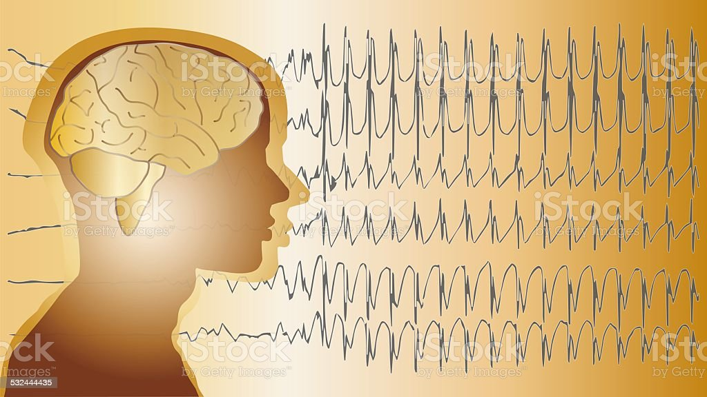 medical background brain epilepsy stock photo