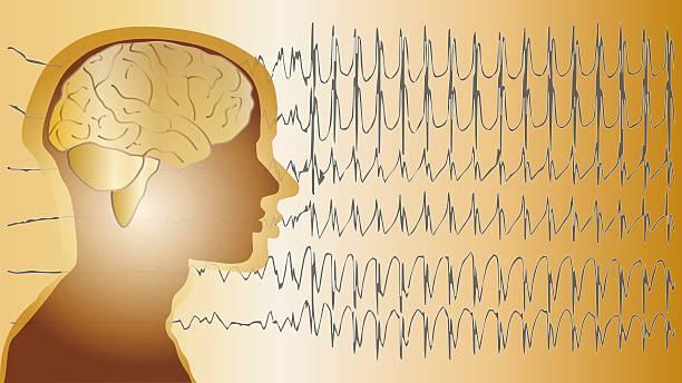 medical background brain epilepsy stock photo