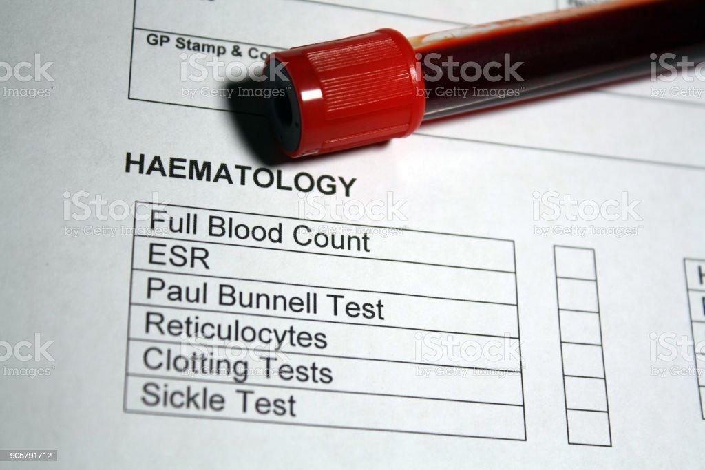 Exame de sangue - foto de acervo