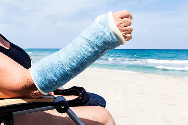 Medical: Broken arm in the summer stock photo