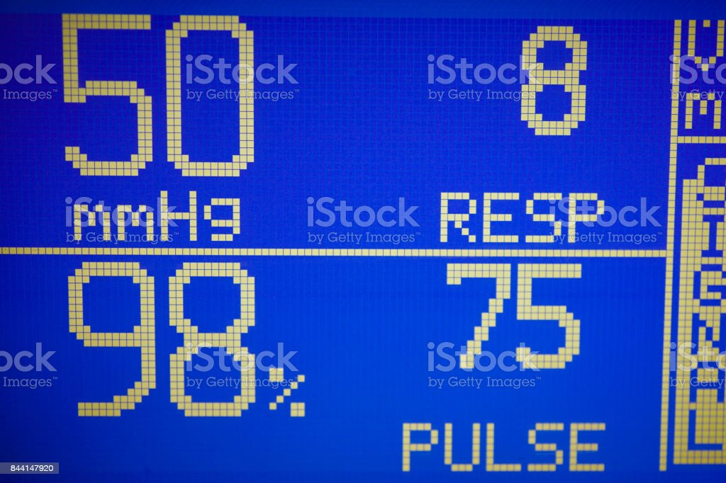 The screen displays the wave form of oxygen saturation in blood red.