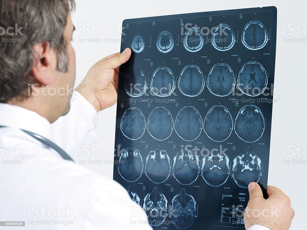 Medical doctor analyzing a CT scan stock photo