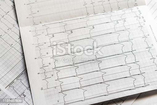 istock medical ecg analysis on paper concept, heart beat 1139457839