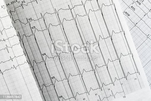 istock medical ecg analysis on paper concept, heart beat 1139457842