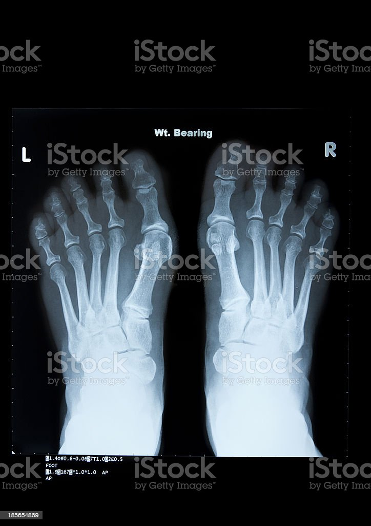 Hallux valgus x-ray