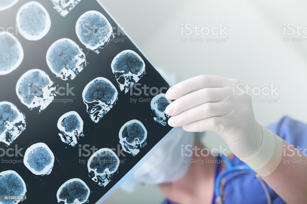 Medical experts studied the EEG condition of the patient - foto stock