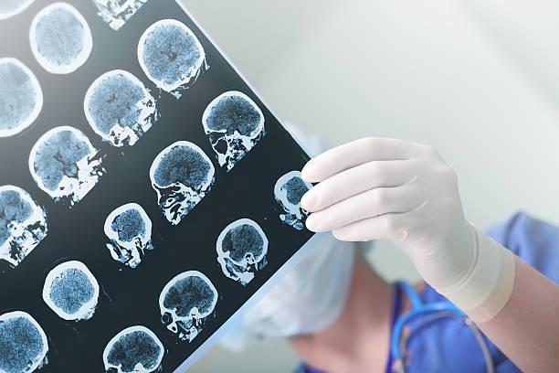 Medical experts studies the eeg condition of the patient picture id636332090?b=1&k=6&m=636332090&s=612x612&w=0&h=rvmbbjab3uprbkez1cyoxma6ipsp6j1ielnr5q29rjw=