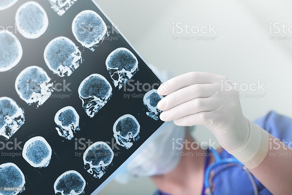 Medical experts studies the EEG condition of the patient stock photo