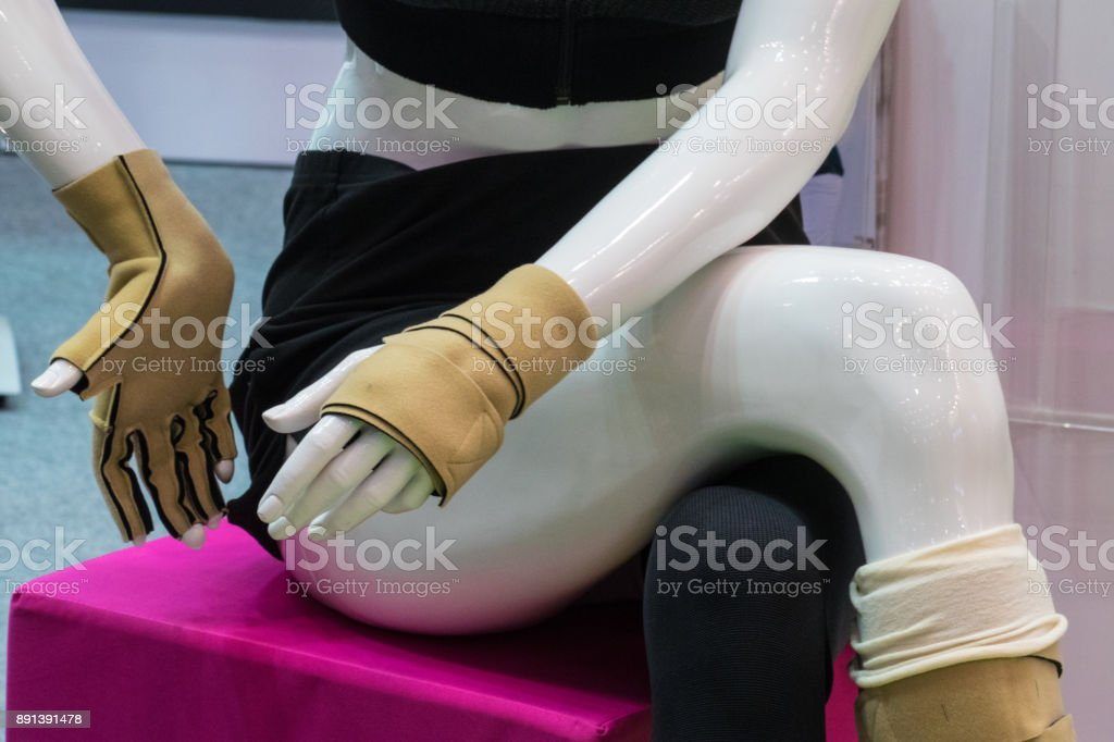 medical fixators from fractures on hands stock photo