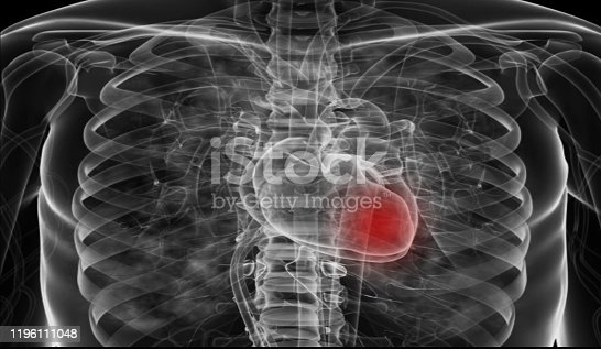 637851338 istock photo Medical flim chest x-ray body  heart and   both lung.concept MRI use diagnosis disease myocadium infraction (MI) and physiology lung diease. and point red on apex heart in flim. 1196111048