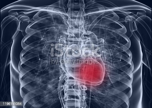 637851338 istock photo Medical flim chest x-ray body  heart and   both lung.concept MRI use diagnosis disease myocadium infraction (MI) and physiology lung diease. and point red on apex heart in flim. 1196111054