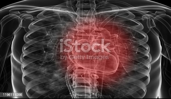 637851338 istock photo Medical flim chest x-ray body  heart and   both lung.concept MRI use diagnosis disease myocadium infraction (MI) and physiology lung diease. and point red on apex heart in flim. 1196111056