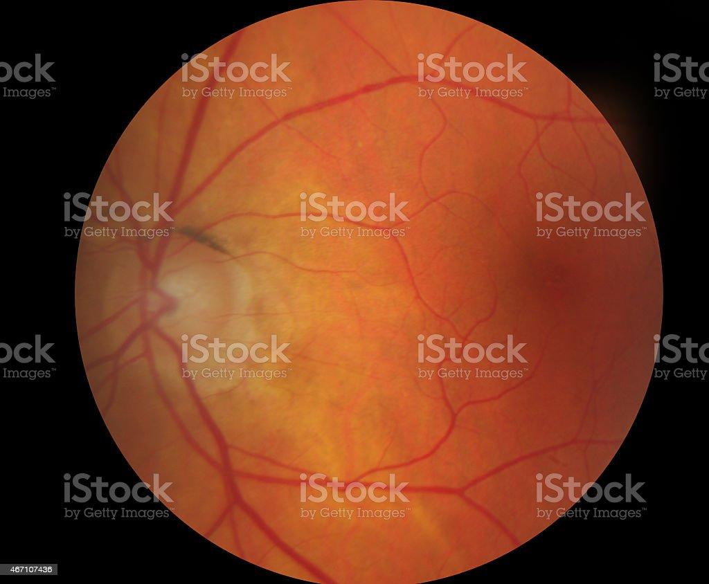 Medical fundus photo of macula stock photo