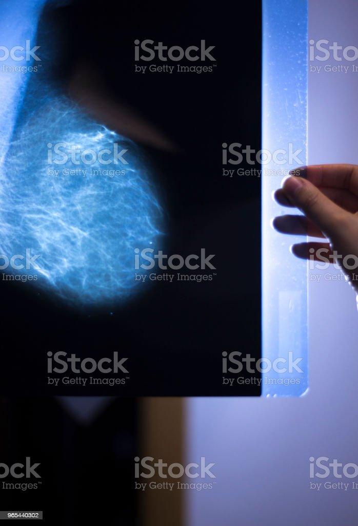 Medical hospital mammography x-ray breast cancer mammogram scan. zbiór zdjęć royalty-free