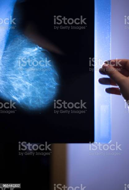 Foto de Mamografia De Câncer Do Hospital Médico Mamografia Raio X Mama Scan e mais fotos de stock de Biópsia