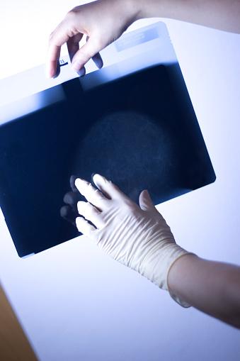 의료 병원 Mammography X 선 유 방 암 유 스캔 Screening에 대한 스톡 사진 및 기타 이미지