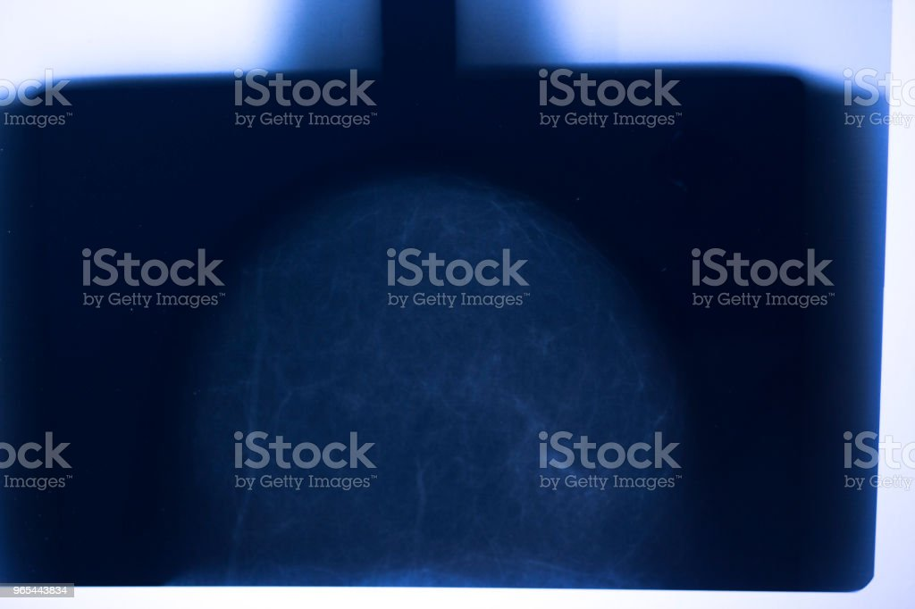 Medical hospital mammography x-ray breast cancer mammogram scan. royalty-free stock photo