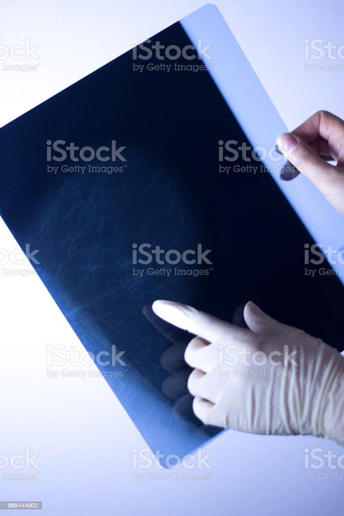 醫用乳腺鉬靶 x 線乳腺癌乳腺乳房造影掃描。 - 免版稅X光機圖庫照片