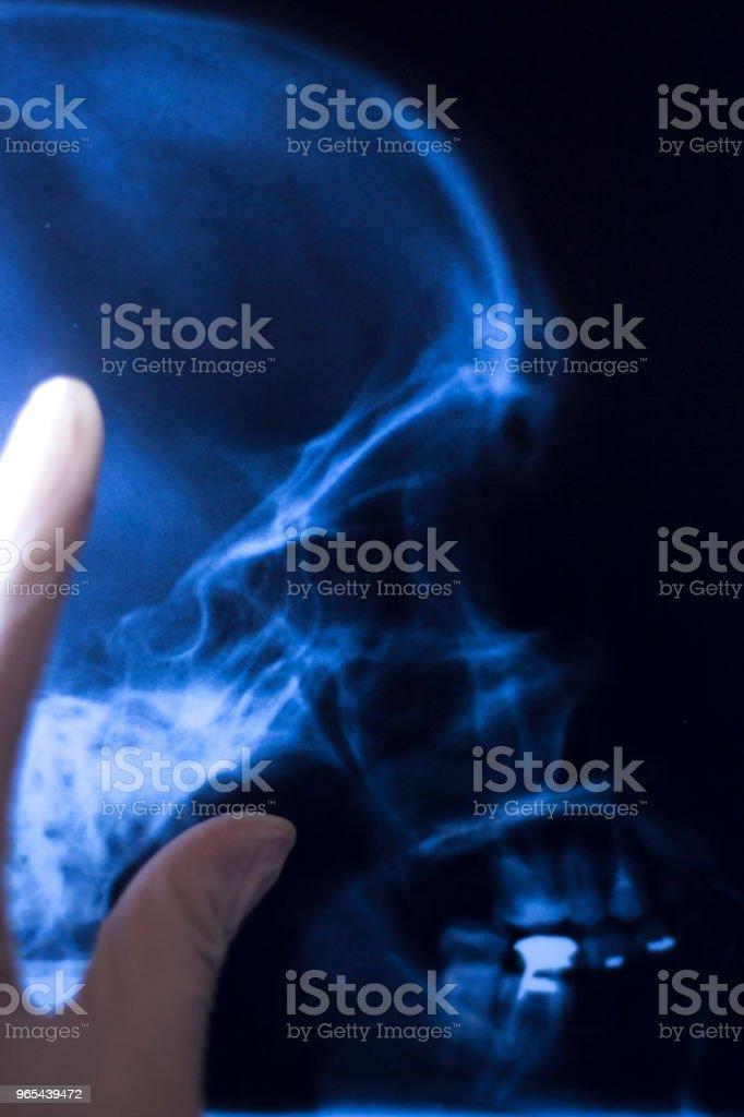 Radiographie médicale hôpital face bouche du crâne, des dents, des scan de nez et les yeux. - Photo de Adulte libre de droits