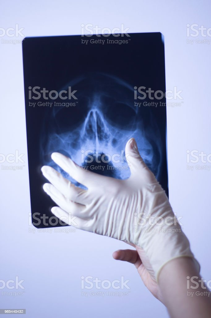 Medical hospital x-ray face skull mouth, teeth, nose and eyes scan. royalty-free stock photo