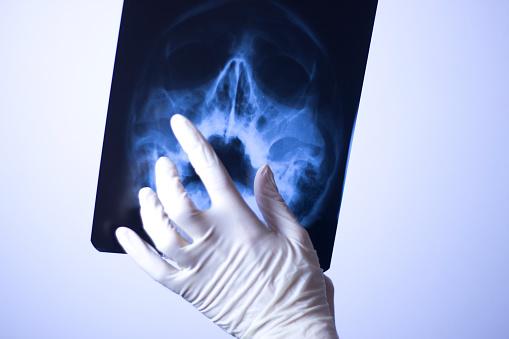 의료 병원 엑스레이 두개골 입 치아 코 눈 검사를 직면 한다 X-레이에 대한 스톡 사진 및 기타 이미지