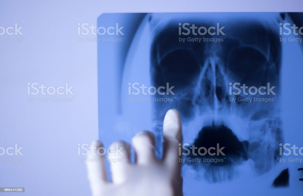 Medical hospital x-ray face skull mouth, teeth, nose and eyes scan. zbiór zdjęć royalty-free