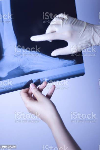 Foto de Traumatologia De Pés De Raio X Médicos Hospital Scan e mais fotos de stock de Adulto