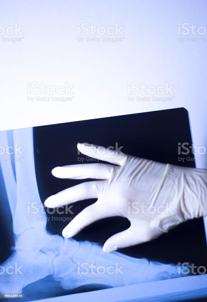 의료 병원 x 선 발 학 스캔. - 로열티 프리 X-레이 스톡 사진