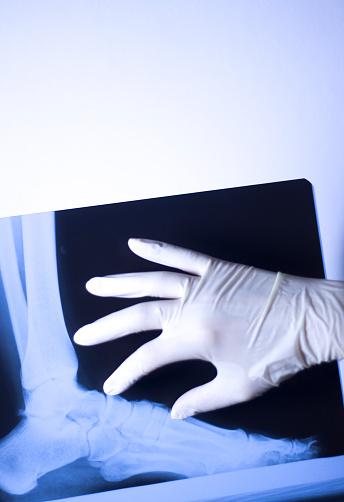 의료 병원 X 선 발 학 스캔 X-레이에 대한 스톡 사진 및 기타 이미지