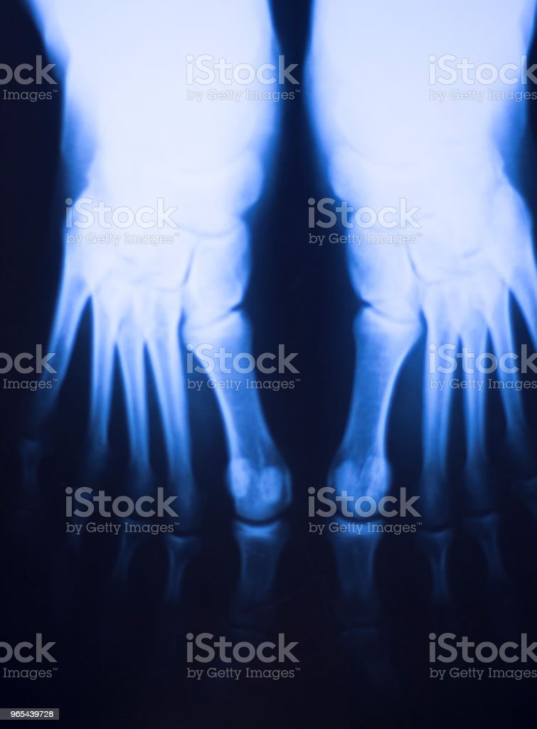 Medical hospital x-ray feet traumatology scan. zbiór zdjęć royalty-free