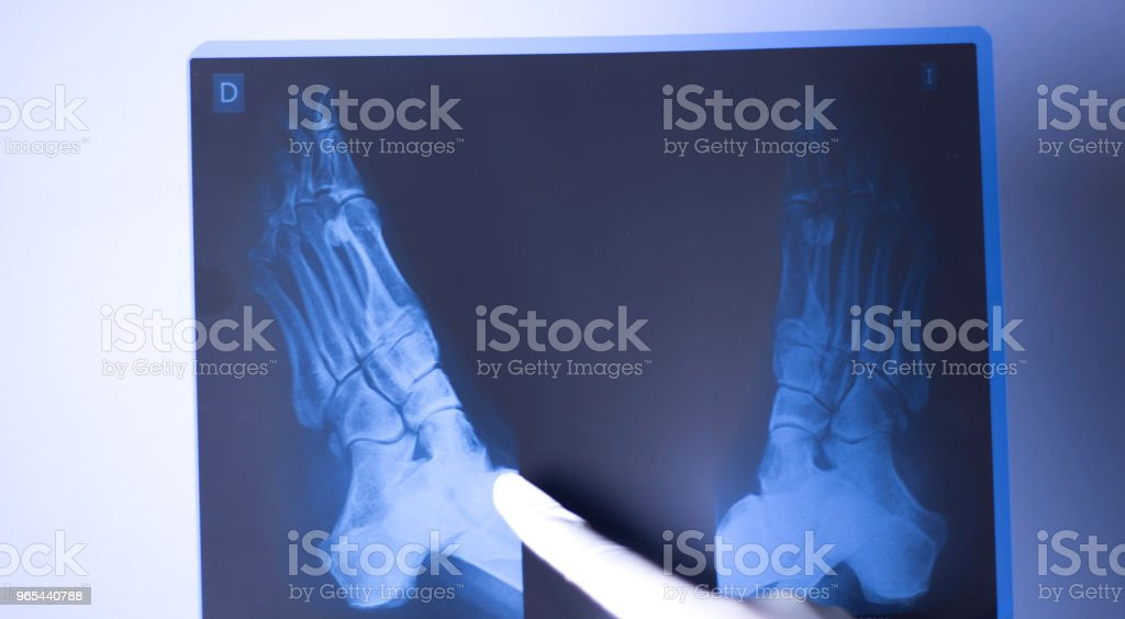 Medical hospital x-ray feet traumatology scan. royalty-free stock photo